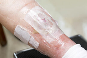 A patient's wound is dressed with maggots to eat the wound bacteria. Both maggots and leeches were approved by the FDA for medicinal use in 2004.