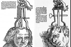 Reproductions of trepanation woodcuts from a late 1500s field book of surgery.