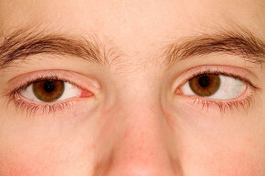 This patient has strabismus, or crossed eyes. The earliest use of Botox was to treat this condition.