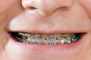 Braces aren't a one-size -- or even a one-style -- fits all endeavor.