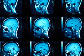 A brain scan could  tell you if a person has a predisposition to a lack of empathy, but it won't tell you if they're a criminal.