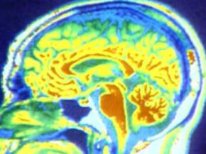 The brain can survive for up to six minutes after the heart stops. Afterward brain death results when the entire brain, including the brain stem, has irreversibly lost all function.