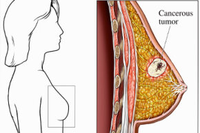 A medical illustration shows a cancerous tumor within the female breast.
