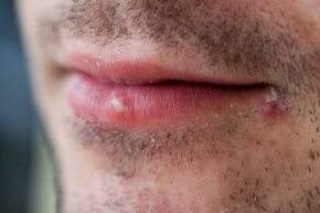 Cold sore outbreaks can be triggered by stress. See more pictures of skin problems.