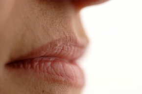 Personal Hygiene ­Image Gallery Can a lack of water lead to dry, cracked lips? See more personal hygiene pictures.