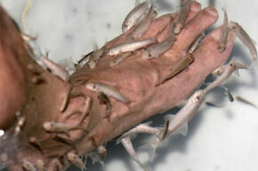 Doctor fish are used in pedicures and other skin treatments toremove dead skin cells.