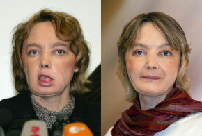 Isabelle Dinoire, the first face transplant recipient, a few months after her operation and a year later