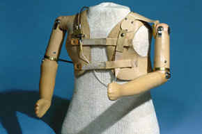 This upper limb prothesis was created for children exposed to the drug thalidomide in utero.