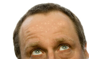 Flat warts aren't as big as common warts, but they're still a cosmetic problem. See more pictures of skin problems.