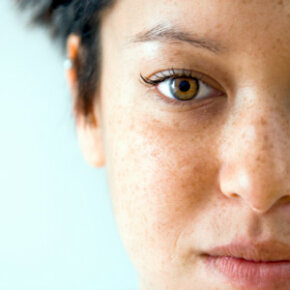 Skin Problems Image Gallery Freckles are a part of many people's personality. See more pictures of skin problems.