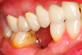 The best treatment for gingivitis is good oral hygiene to prevent it from occurring.