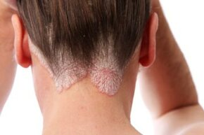 Psoriasis is just one possible cause of scalp sores. Do you know the rest?