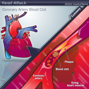 A heart attack, courtesy of a blood clot in a coronary artery