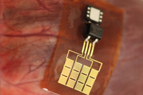 A PZT-based piezoelectric pacemaker gets tested on an animal model