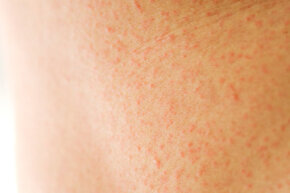 Heat rash is typically caused by blocked sweat ducts. See more pictures of skin problems.