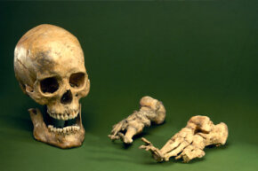 In advanced cases of leprosy, gangrene can occur, resulting in parts of the body becoming deformed, as with these bones.