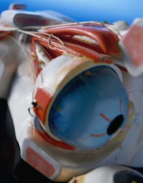 Astigmatism is caused by a defect in the curvature of the cornea or lens of the eye.