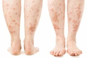 Skin Problems Image Gallery Bacteria, a fungal infection, an allergic reaction -- what could be the cause of this rash? See more pictures of skin problems.