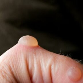 Skin Problems Image Gallery Painful blisters. See more pictures of skin problems.
