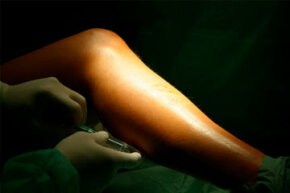 Simple laser treatments for varicose veins involve applying laser-focused heat to the problem area, while endovenus lasertreatments are more invasive. See more pictures of skin problems.