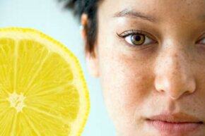 Skin Problems Image Gallery Lemon juice may not get rid of your freckles completely, but it can cause them to fade. See more pictures of skin problems.