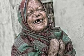 This man in India has a very advanced case of leprosy but still exudes joy.