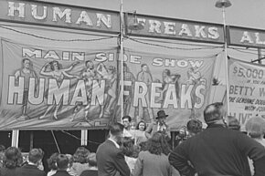 "Sideshows may have mislabeled their performers as ""freaks,"" but the entertainers had medical conditions that were truly fascinating and anomalous."
