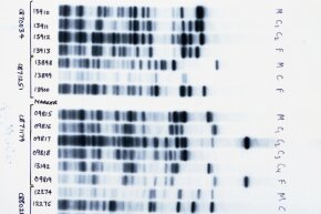 The pattern of these DNA bands is unique to each individual, but some bands are shared by related people.