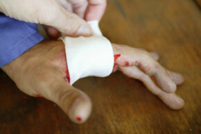 Before you apply that bandage, should you moisturize the wound?