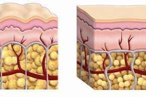 This cross-section diagram shows skin that exhibits cellulite and skin that doesn't. Aside from the size of the fat cells, the components of each are the same.