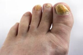 Fungal infections often change the texture and color of your nails. See more pictures of skin problems.