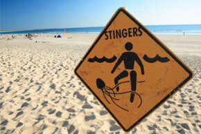 Peeing on a jellyfish sting might make the situation worse.