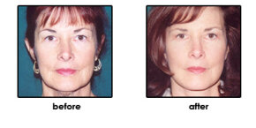Face lifts aren't covered by insurance.
