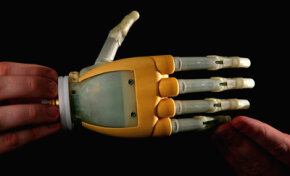 The i-Limb prosthetic hand, from Ossur, has individually powered fingers that allow it to perform different types of grips with improved control.
