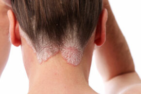 Psoriasis often manifests in red, inflamed skin at the nape of the neck. See more pictures of skin problems.