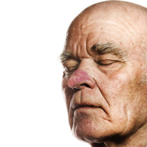 Rhinophyma, a progression of acne rosacea, is characterized by a red and bulbous nose. See more pictures of skin problems.