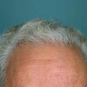 It's not just the quantity of hair growing on the scalp that makes it different from other skin.