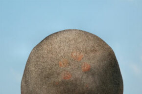 Those scalp sores could be the result of a number of skin conditions. See more pictures of skin problems.