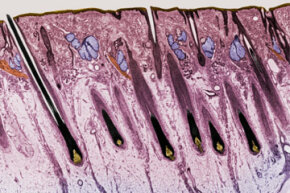In this cross-section of the skin on the human scalp, you can pick out hair follicles, hairs, sweat glands and sebaceous glands, among other points of interest. The follicle all the way on the left, with its resident hair, is easy to see.