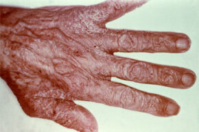The scabies mite burrows under the skin, leaving an itchy, pimple-like rash.