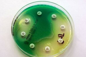 A petri dish with Pseudomonas aeruginosa is shown; this bacterium requires little nutrition and can tolerate a range of settings, including your smartphone.