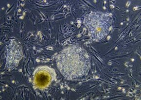 Microscopic 10x view of a colony of embryonic stems cells (The stem cell colonies are the rounded, dense masses of cells.)