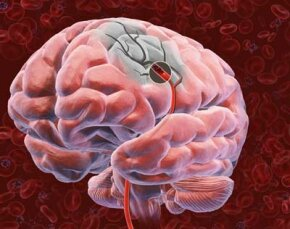 Brain Image Gallery The circled blood clot cuts off oxygen and nutrients to the rest of the brain. See more brain pictures.