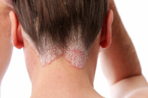 Coal tar, a natural remedy used to treat psoriasis (shown here), can also be phototoxic.
