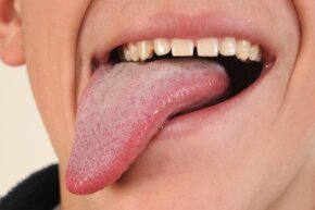Your tongue may be an extremely flexible muscle, but rest assured it's firmly attached to your mouth.