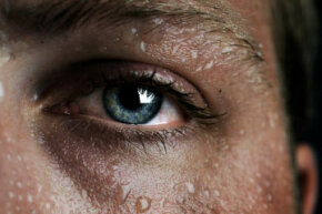 Sweating can cause your pores to open up. View more men's health pictures.