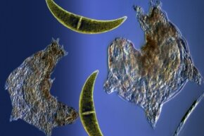 Tardigrades float around with some algae.