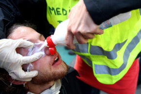 Medics wash a protester's eyes after police sprayed tear gas into a crowd demonstrating during the NATO summit on April 4, 2009, in Strasbourg, France.