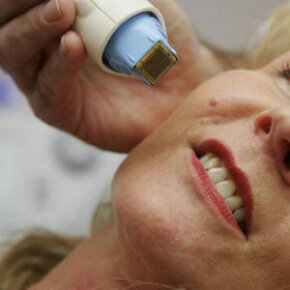 Thermage treatments can actually stimulate collagen growth and tighten the epidermis. See more getting beautiful skin pictures.