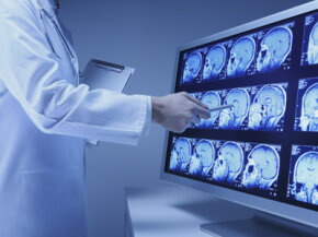 MRI scans like these have yielded the brain's secrets surrounding the process of ticklishness.